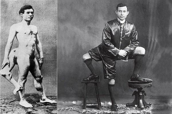 Frank lentini: luomo con tre gambe ilparanormale